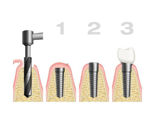 Implantat Zahntechnik Rosenheim